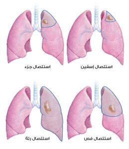 أنواع الاستئصال في حالة سرطان الرئة