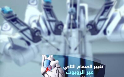 تغيير صمام القلب التاجي عبر الروبوت