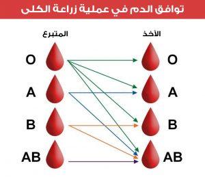 توافق الدم في عملية زراعة الكلى