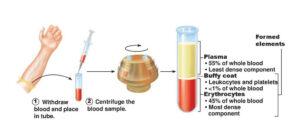 حقن البلازما في عملية التلقيح الاصطناعي