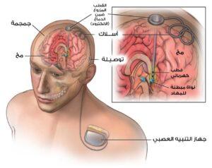 رسم توضيحي لتموضع جهاز التحفيز العميق للدماغ