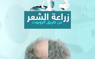 زراعة الشعر بالروبوت