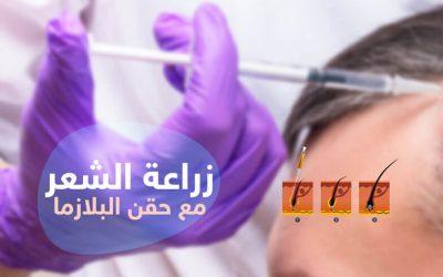 زراعة الشعر مع حقن البلازما