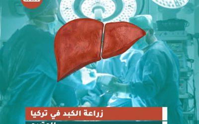 التبرع بالكبد وزراعة الكبد في تركيا