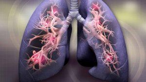 سرطان الرئة من الداخل