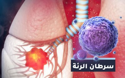 أعراض سرطان الرئة والتشخيص والعلاج في تركيا