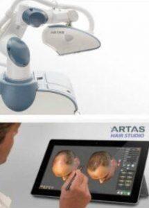 عرض النتائج قبل زراعة الشعر بالروبوت في تركيا