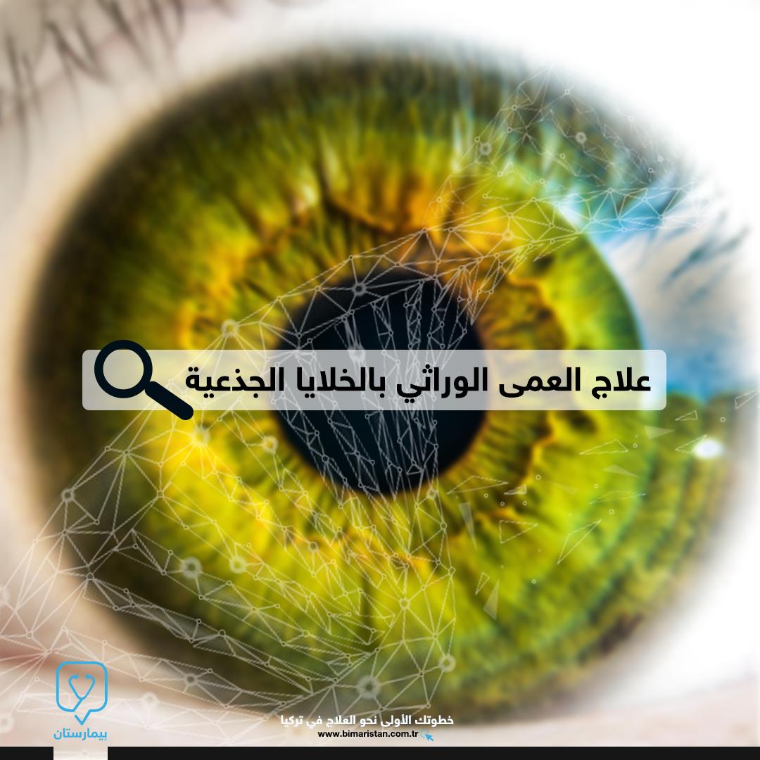 علاج العمى الوراثي بالخلايا الجذعية في تركيا