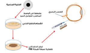 علاج العمى الوراثي بالخلايا الجذعية