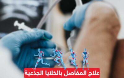 علاج المفاصل بالخلايا الجذعية
