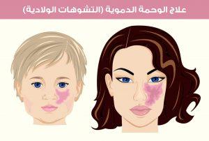 علاج الوحمة الدموية (التشوهات الولادية)