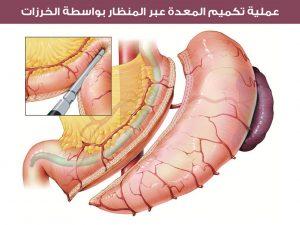 عملية تكميم المعدة عبر المنظار بواسطة الخرزات