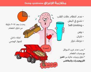 متلازمة الإغراق dump syndrome