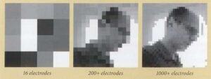نوعية الرؤية بعد زراعة الشبكية الاصطناعية