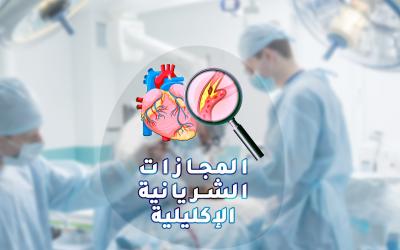 جراحة المجازة التاجية بدون مضخة