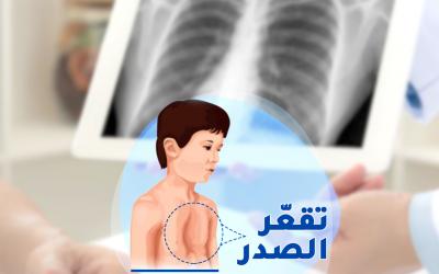 علاج تقعر القفص الصدري