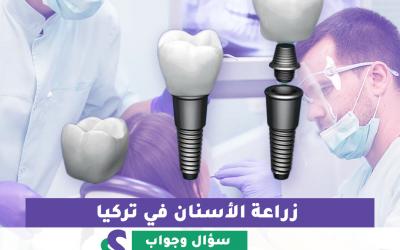 جراحة زراعة الأسنان