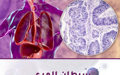 سرطان المريء | كل ما يجب أن تعرفه عن سرطان المريء وعلاجه
