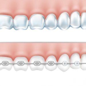 تقويم الأسنان اللساني