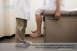 مرض الشرايين المحيطية في الساقين