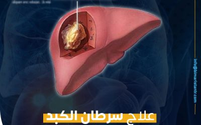 علاج سرطان الكبد